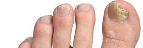 Thick Yellow Toenails  Help Is Here...No Surgery Required