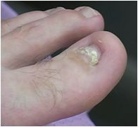 Houston Keryflex Toenail Restoration